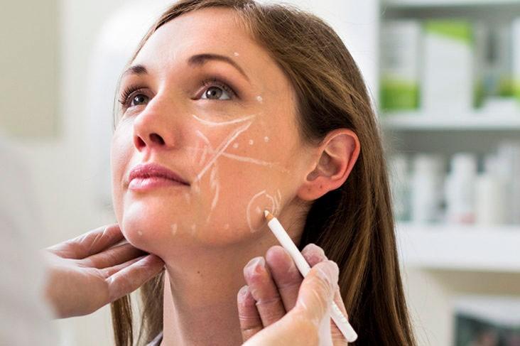Подтянуть кожу на лице Диспорт уколы