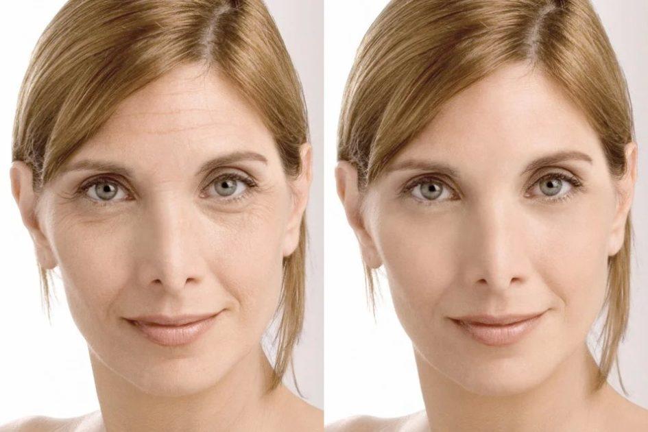 Биоревитализация лица Уменьшить или убрать морщины
