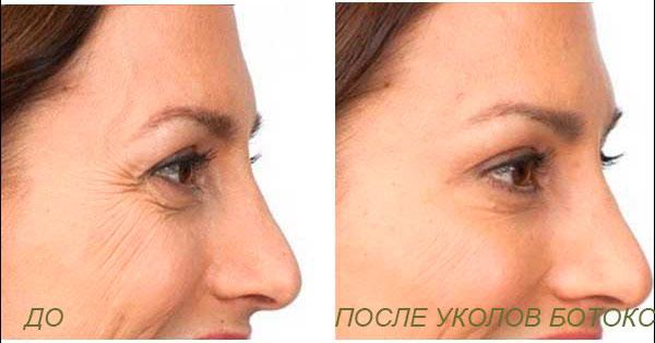Лазерное омоложение Омолаживающий пилинг уколы от морщин Процедуры для лица