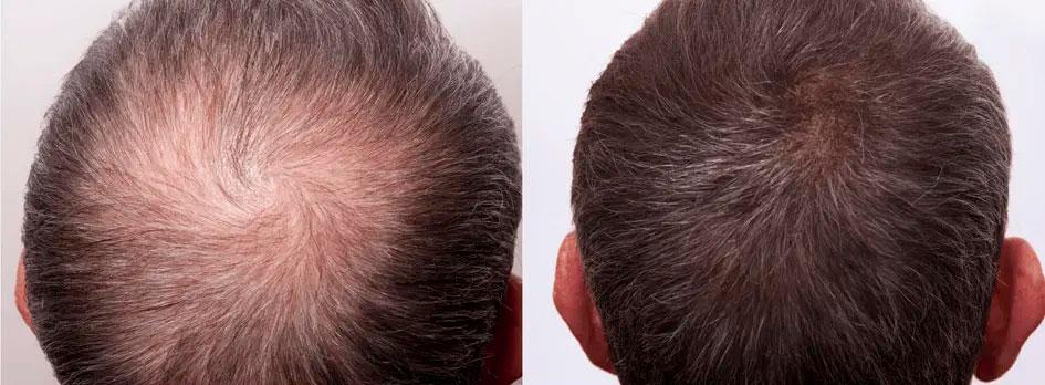 Ботокс от головной боли Ботокс для волос отзывы