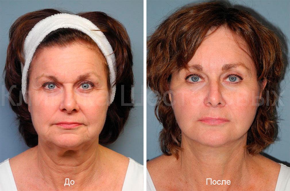 процедуры проводятся опытными инъекции против морщин морщинки на лице