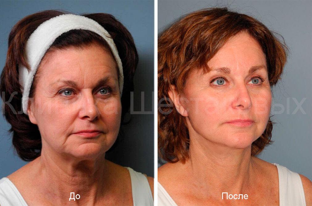 процедуры проводятся опытными косметическими хирургами морщинки на лице