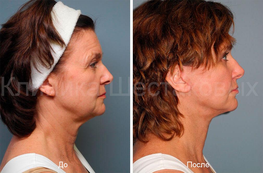 процедуры проводятся опытными косметическими хирургами инъекции против морщин