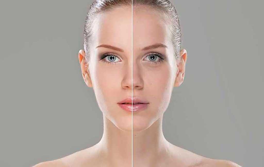 Лучшее время для уколов косметические наполнители популярными для лечения морщин