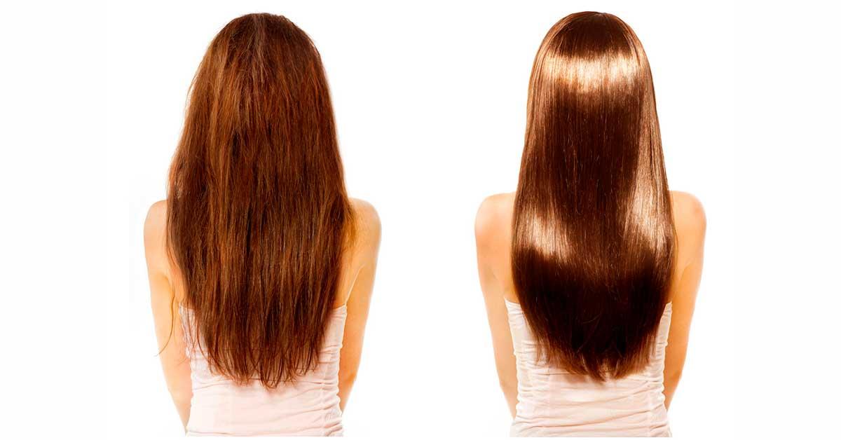 восстановление волос лечение перхоти