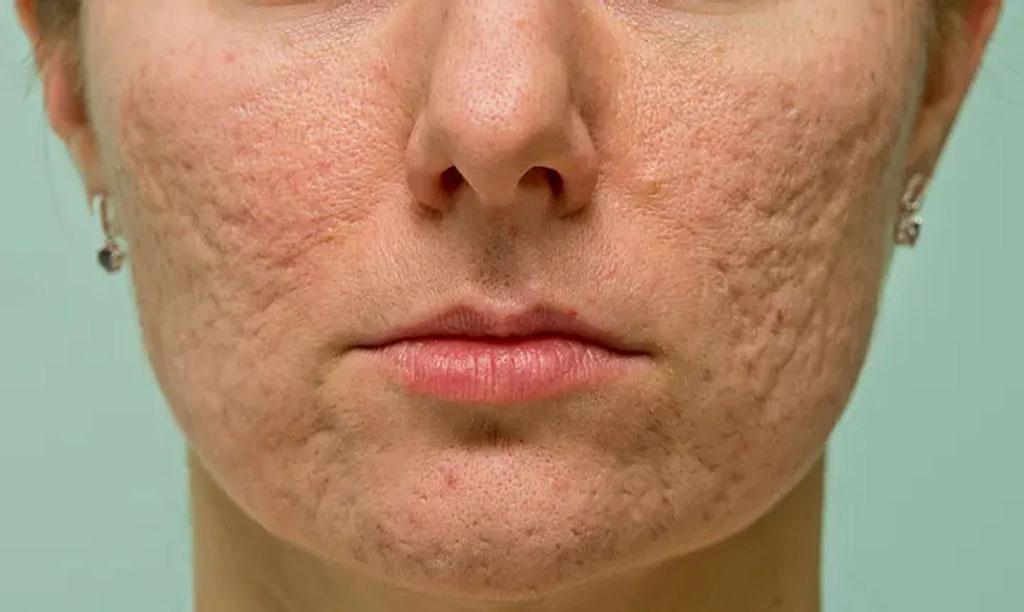 Лазерное лечение псариаза Лечение шрамов от угревой сыпи Хронический дерматит вылечить