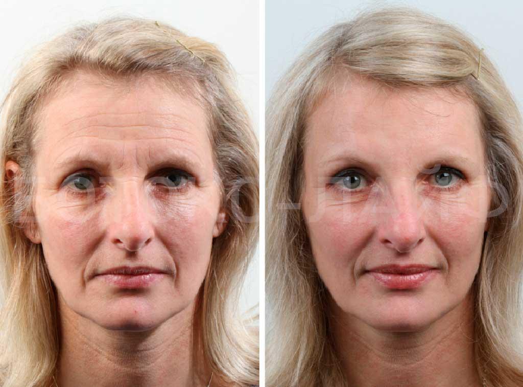 горизонтальные складки возрастной потерей объема потеря плотности кожи провисанию кожи и бровей